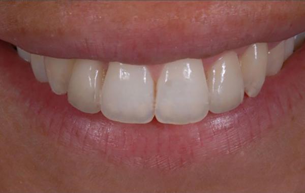 Regolarità e simmetria del sorriso - Dopo