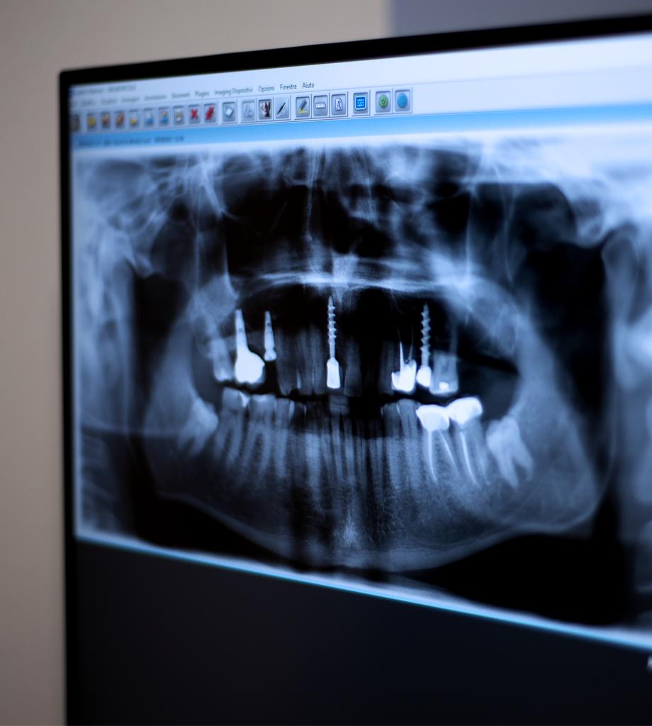 Che vantaggi offre l'implantologia?